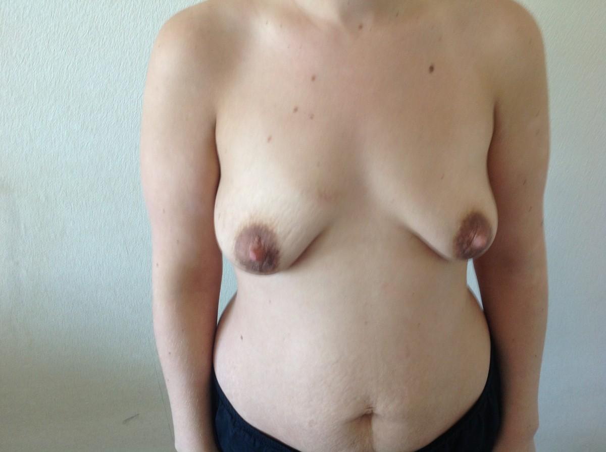 Фото обвисшей маленькой груди 15 фотография