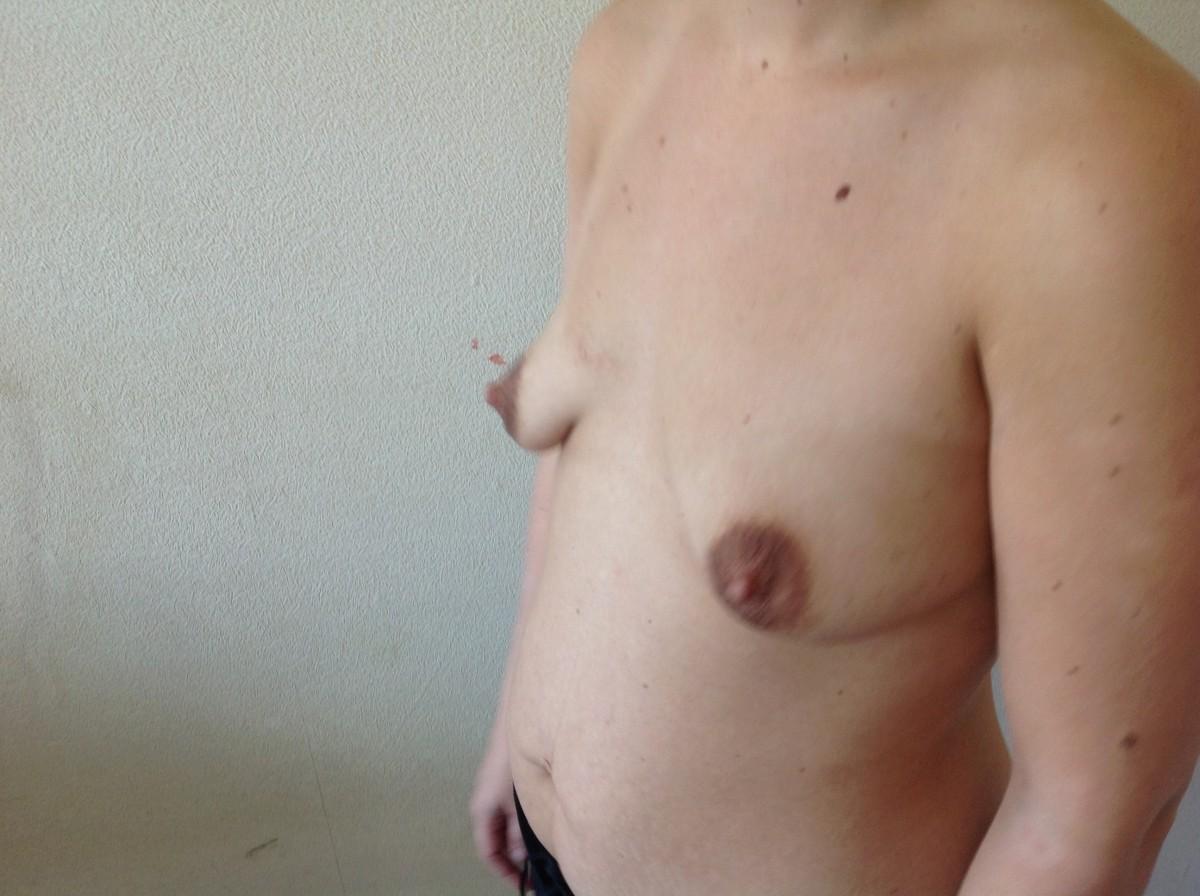 Фото большая обвисшая грудь 14 фотография