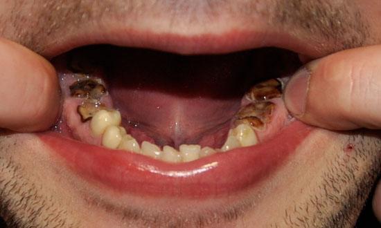 Если раскрошился зуб у ребенка