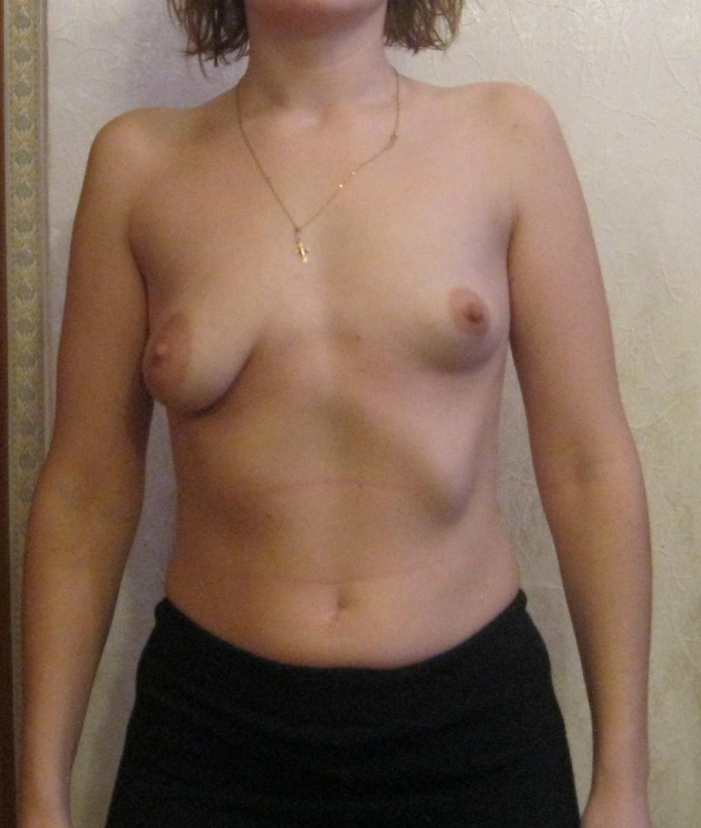 Провисшая грудь фото 25 фотография