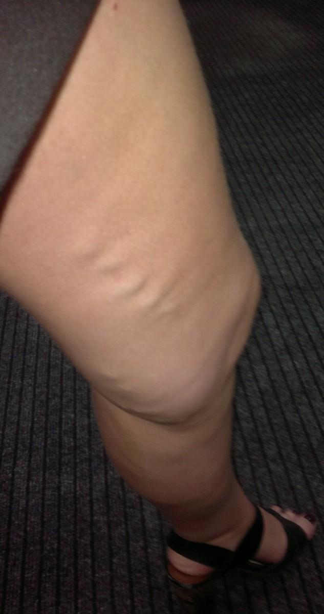 вылезла вена на ноге у ребенка