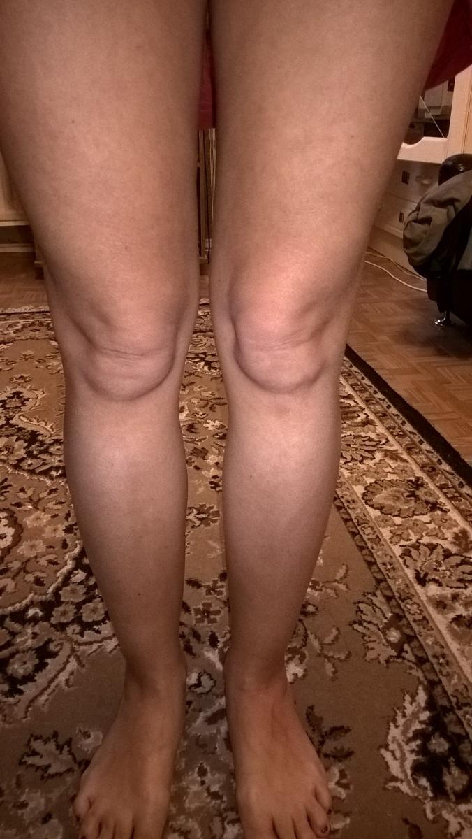 Венозная сетка на ногах у беременных 17
