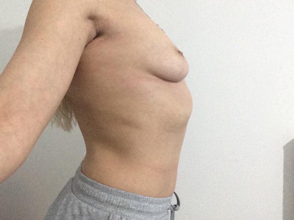 Увеличить свою грудь на два размера