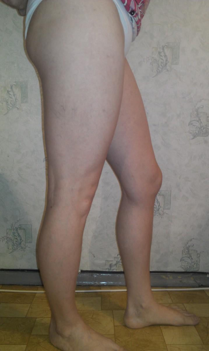 На ногах появилась сетка варикозная что делать